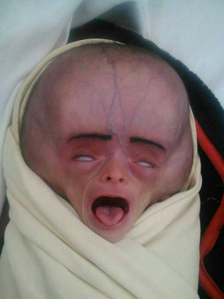 infant deformities in yemen linked to saudi led bombardment yemenextra