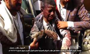 a photo shows a child who sustained in the Saudi airstrikes that targeted bus students in Dhahian , northern Saada province