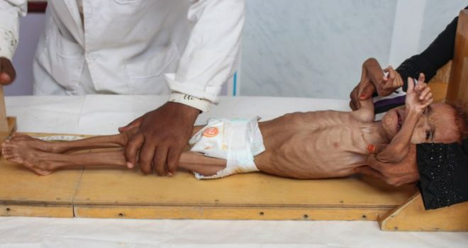 How does the Opposition in Britain Accuse Saudi Arabia of Killing Yemenis?