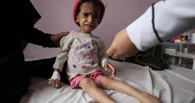 Children of Yemen Need an End to the Brutal War