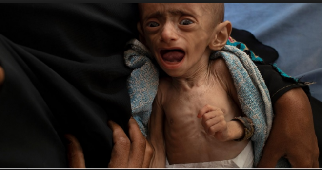 War Effects on the Vital Lifeline for Millions of Starving Yemenis